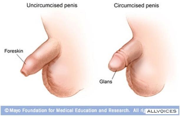 Usando maxoderm con pene no circuncidado